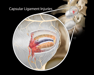 Capsular Ligament Injuries