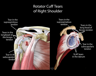 Rotator Cuff Tears of Right Shoulder